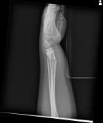 JOPA IQ Wrist Fracture.jpg