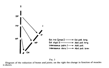 Magnificent Jbjs Classics Pollicization Of The Index Finger Orthobuzz Wiring 101 Eattedownsetwise Assnl
