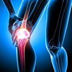Osteoarthritis for BSTOTW