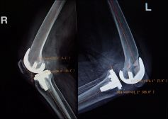 Bilateral TKA for OBuzz