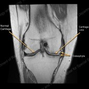 MRI of Knee OA 2.jpg