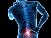 Low-Back-Pain for OBuzz