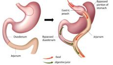 Gastric Bypass for OBuzz